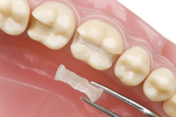 For A Durable And Non Surgical Restoration, Consider Dental Bridges