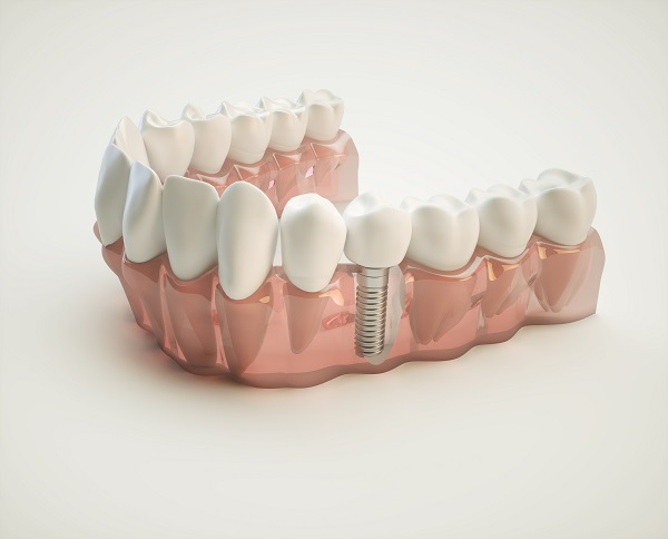 How Does The Process Work When Getting A Dental Implant?