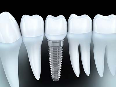 Dental Implants Are The Modern Way To Replace Teeth