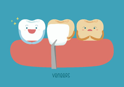 A Cosmetic Dentist Answers Common Questions About Veneers